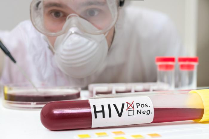 A doctor with a positive HIV blood sample.