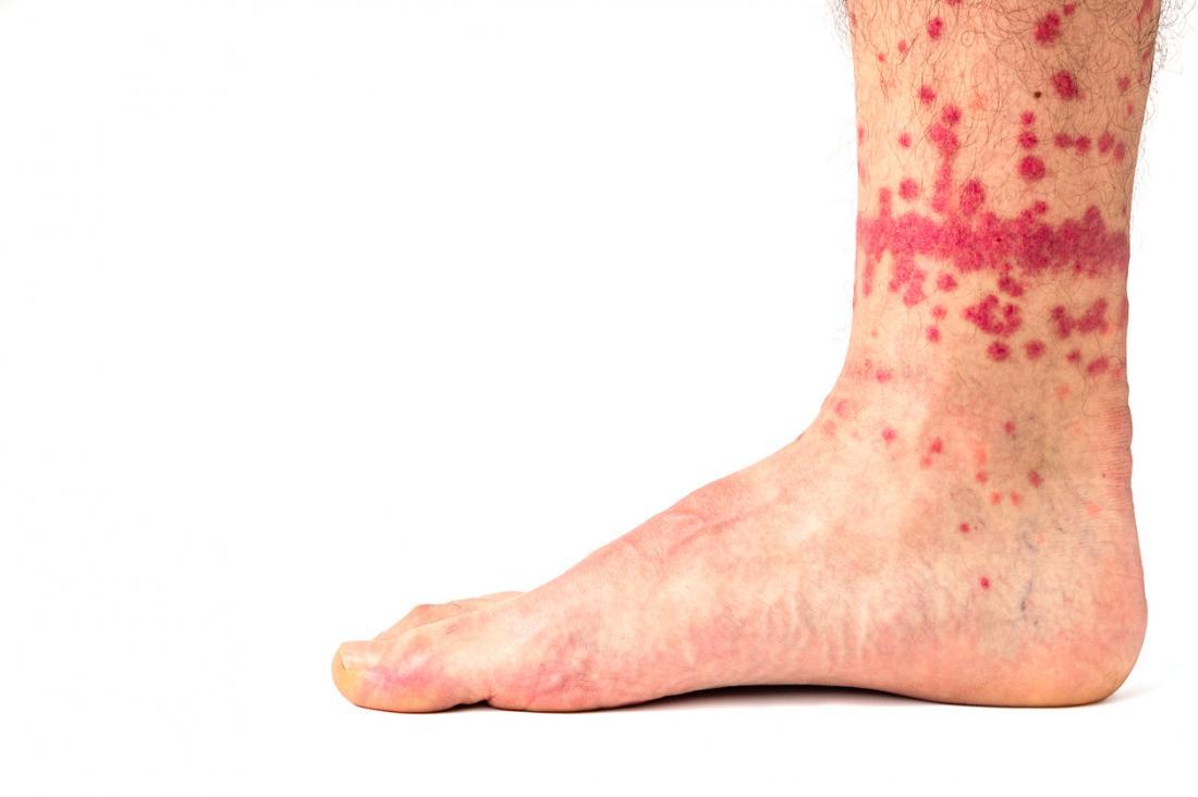 Fleabites Symptoms Causes Risks And Treatment