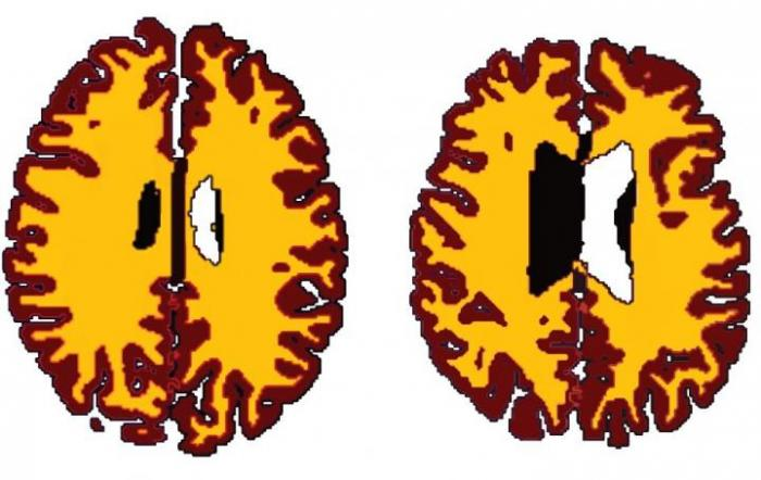 [Brain scans of a lean vs. an overweight person]