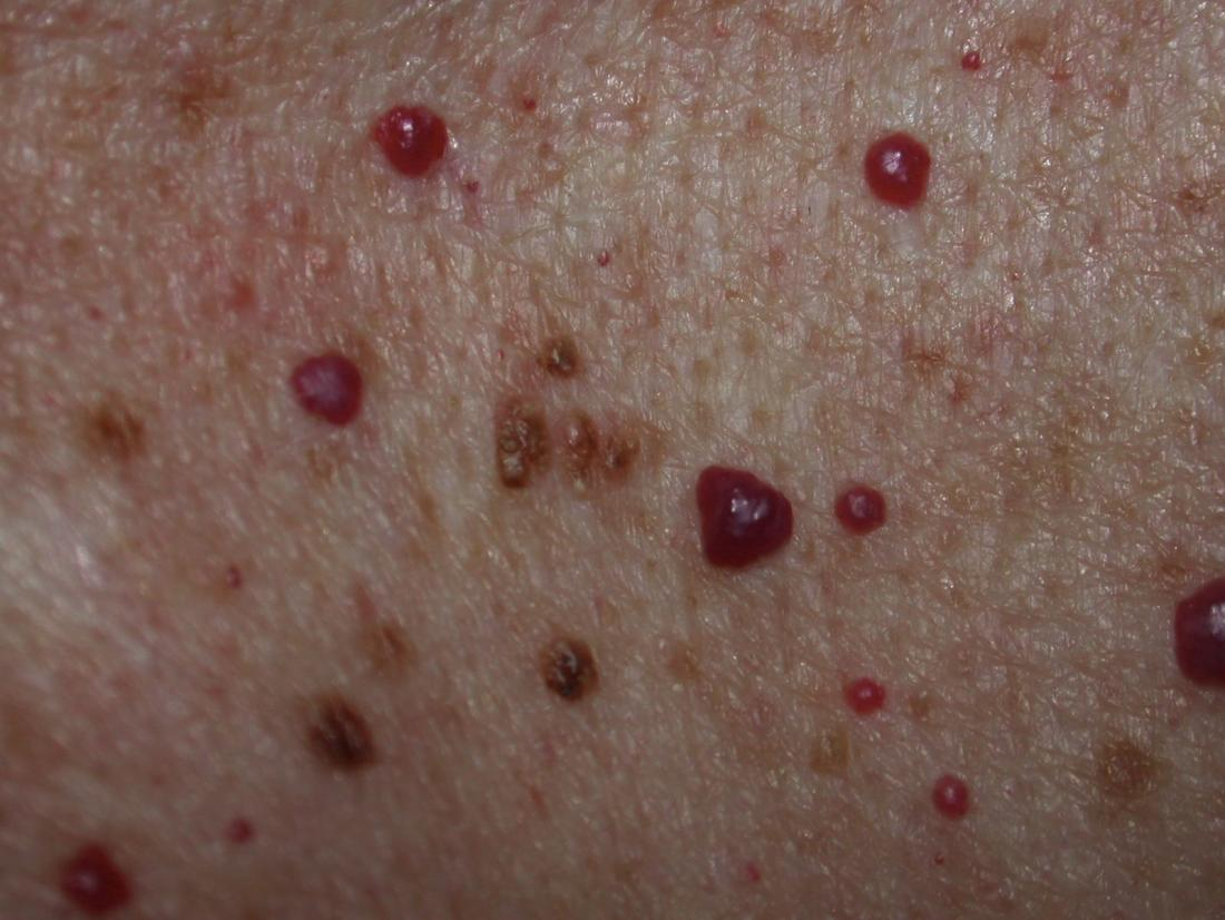 Cherry angioma should i be concerned