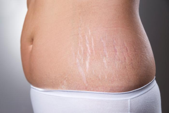 Cream  Stretch Marks Preview