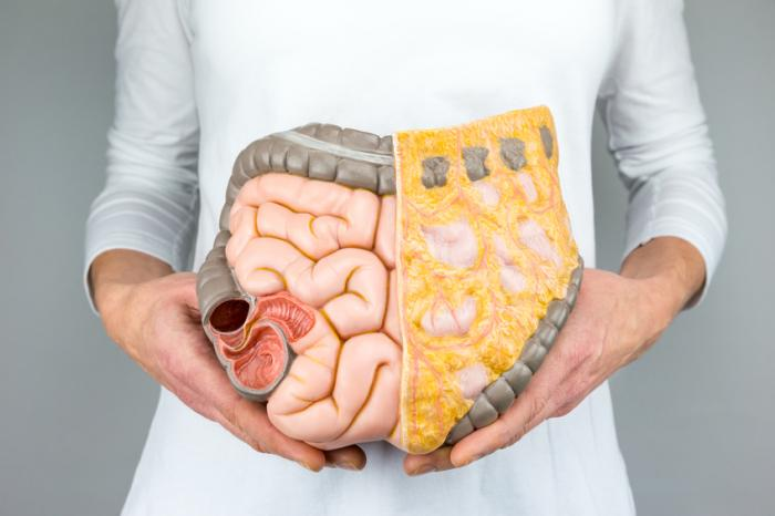 [woman holding model of intestines in front of her]