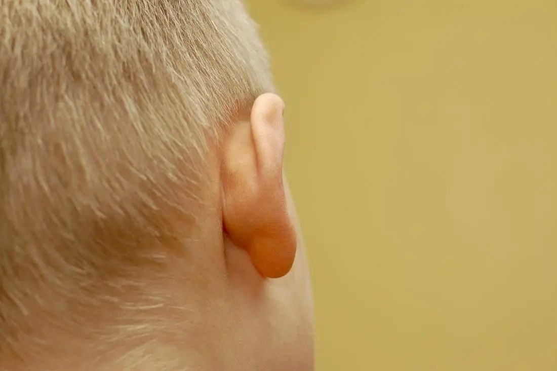 Lumps behind the ear: Causes and when to see a doctor