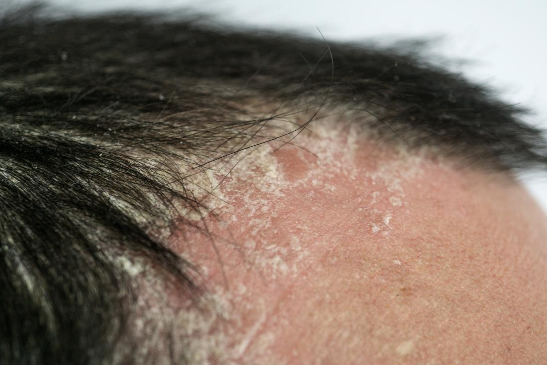 Can weight loss cure psoriasis