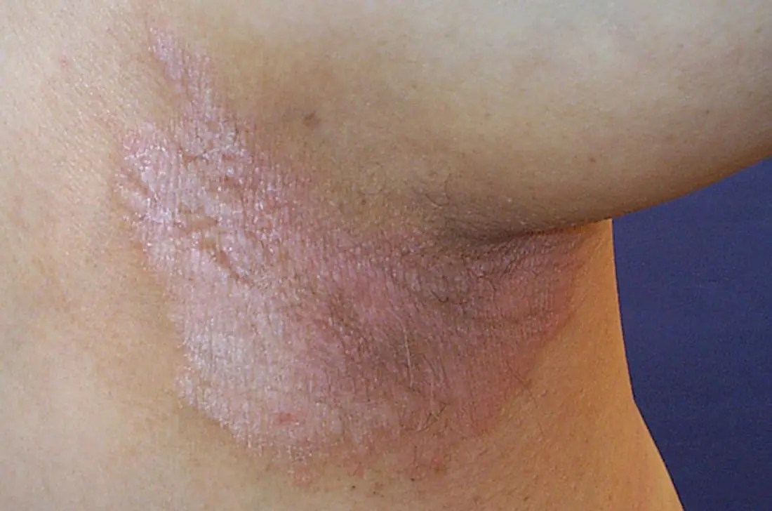 bloodletting psoriasis kezelése kenőcsök pikkelysömör fotó kezdeti szakasz