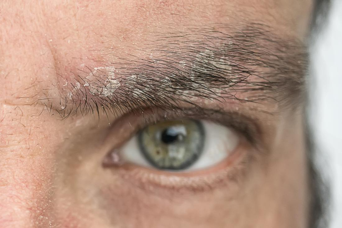 man with eyebrow psoriasis