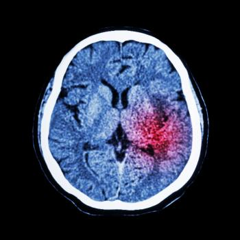 CT scan of a stroke