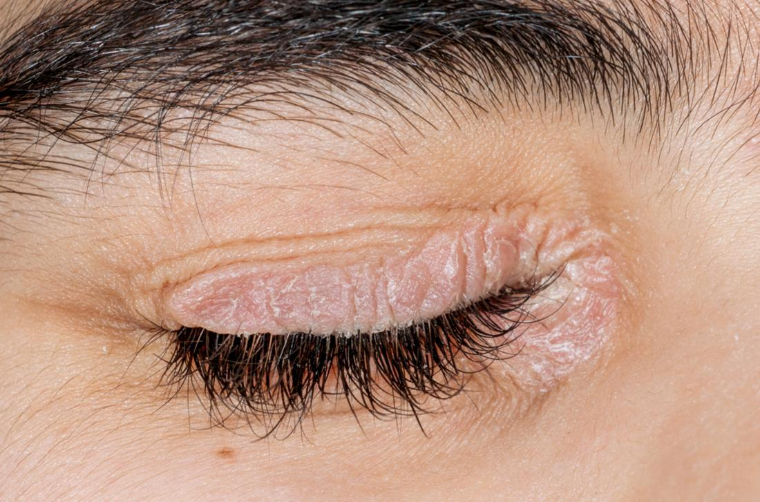 Psoriasis around the eye lids of a woman . Image Credit: Dr Harout Tanielian, Science Photo Library
