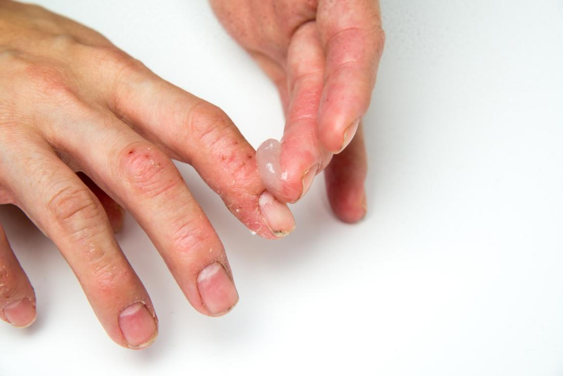 applying treatment to psoriasis