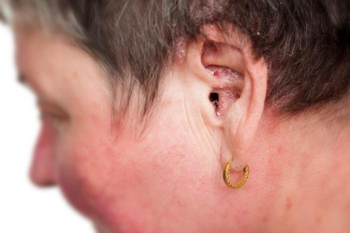 psoriasis in the ear