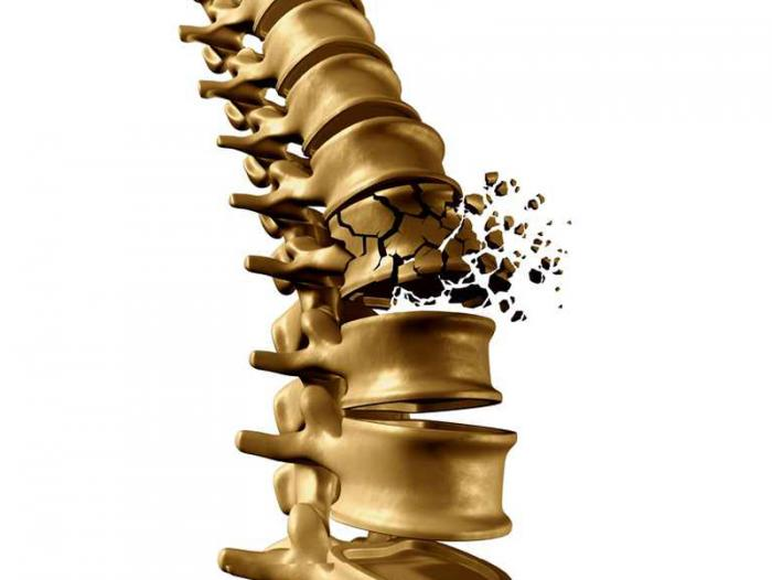 [bone fracture of the spine]