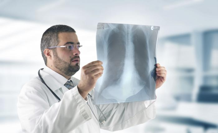 doctor examining chest x-ray