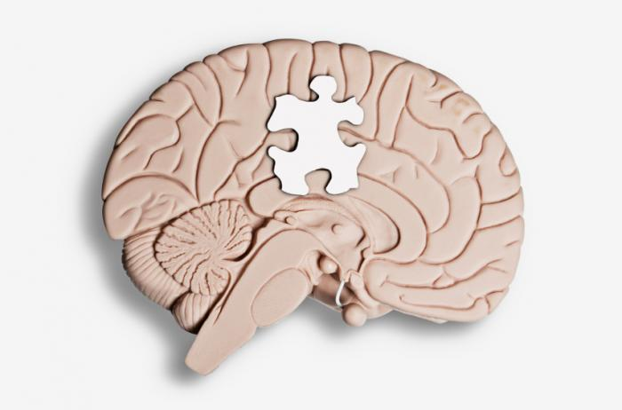 brain with jigsaw puzzle piece