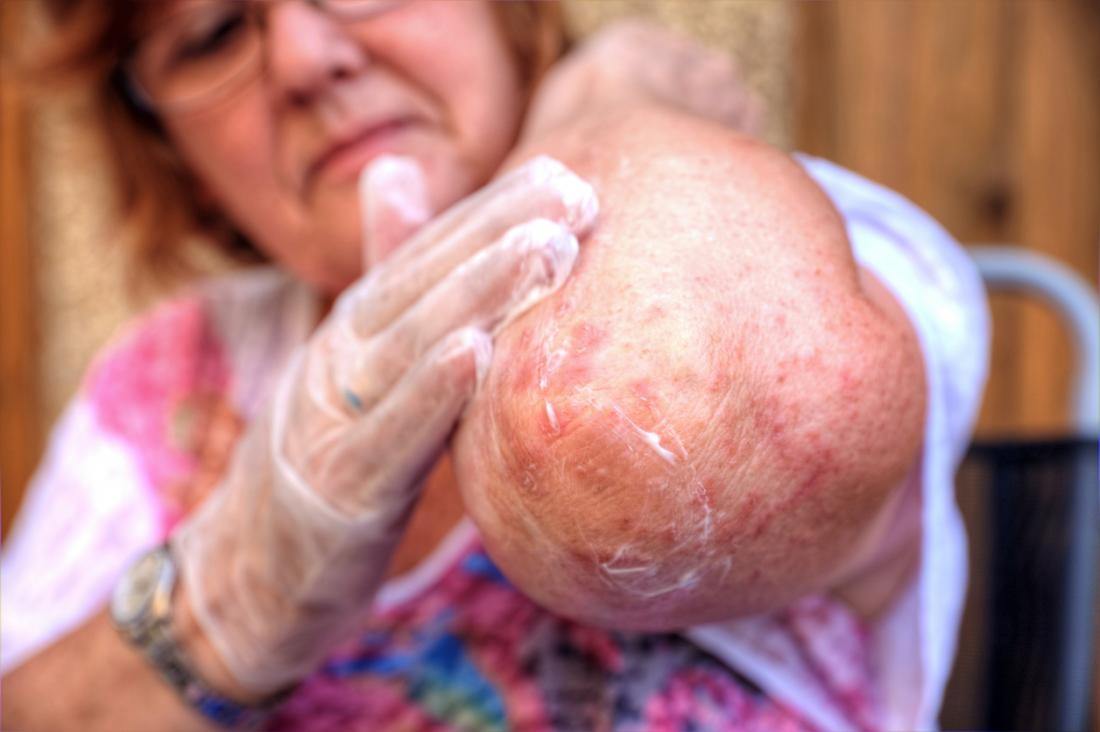 Eczema can appear in awkward places, including on the elbows.