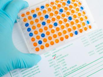 ELISA test for HIV