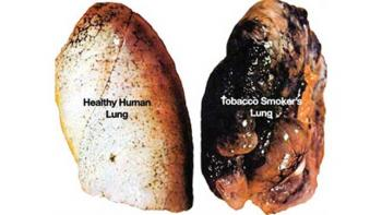 lung cancer in pictures