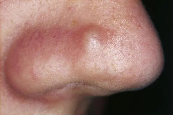 Bumps On The Skin Pictures, Causes, And Treatments