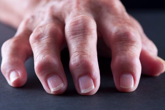 Arthritis mutilans Symptoms, causes, and treatment