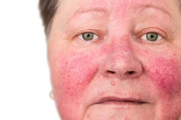 rosacea on the face