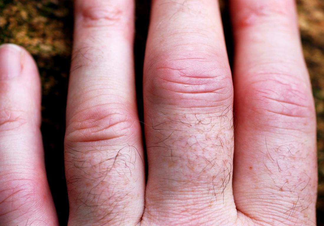 psoriatic fingers