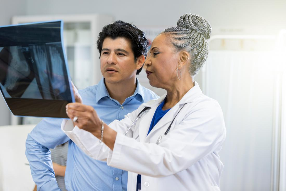 doctor and patient looking at x ray of psoriatic arthritis