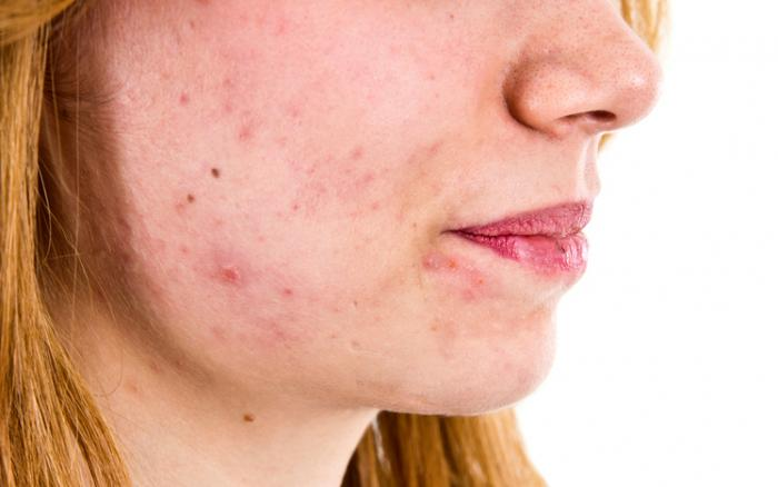 [A woman with acne]