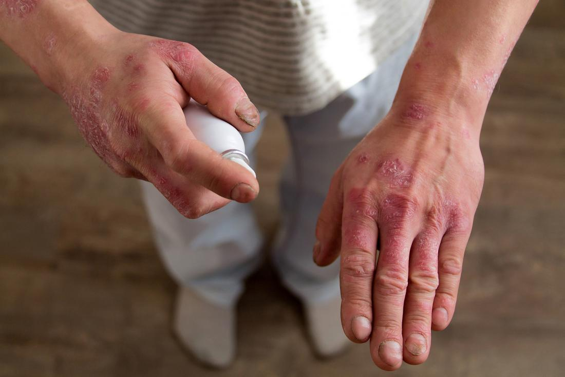 Man with psoriasis on hands