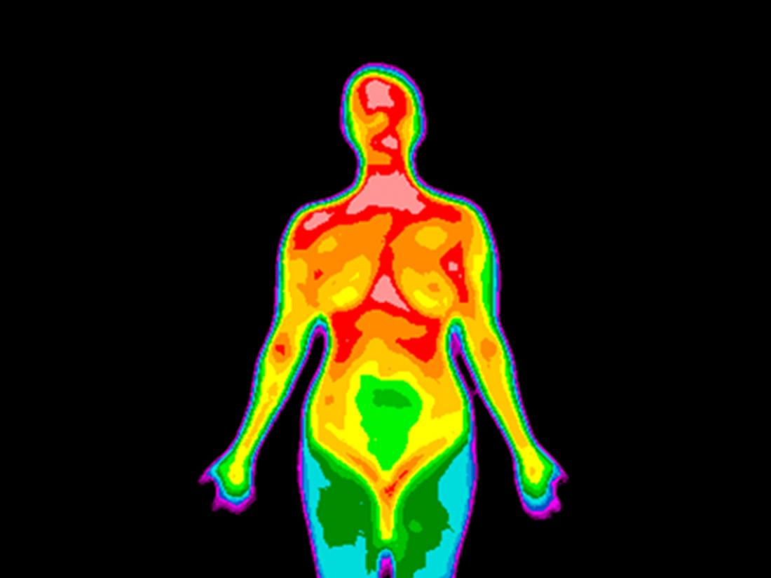 Breast thermography image