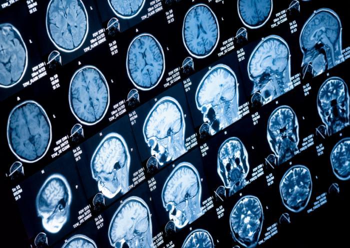 brain scans mri - Apa yang Perlu Diketahui Tentang Stroke Hemoragik?
