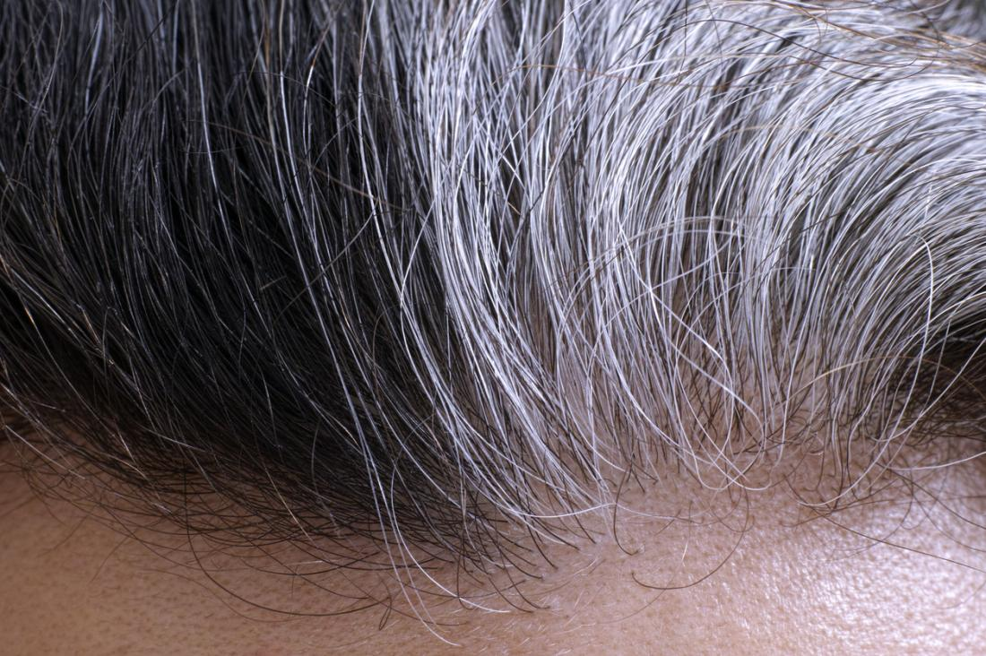 [A man with gray hair]