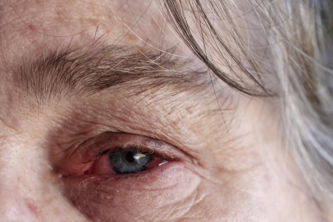 红色的眼睛
