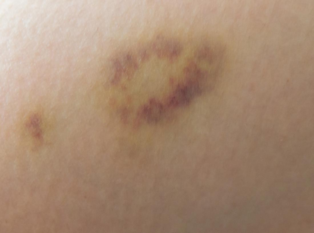 Yellow Bruise On The Breast Causes, Home Remedies, And -4753