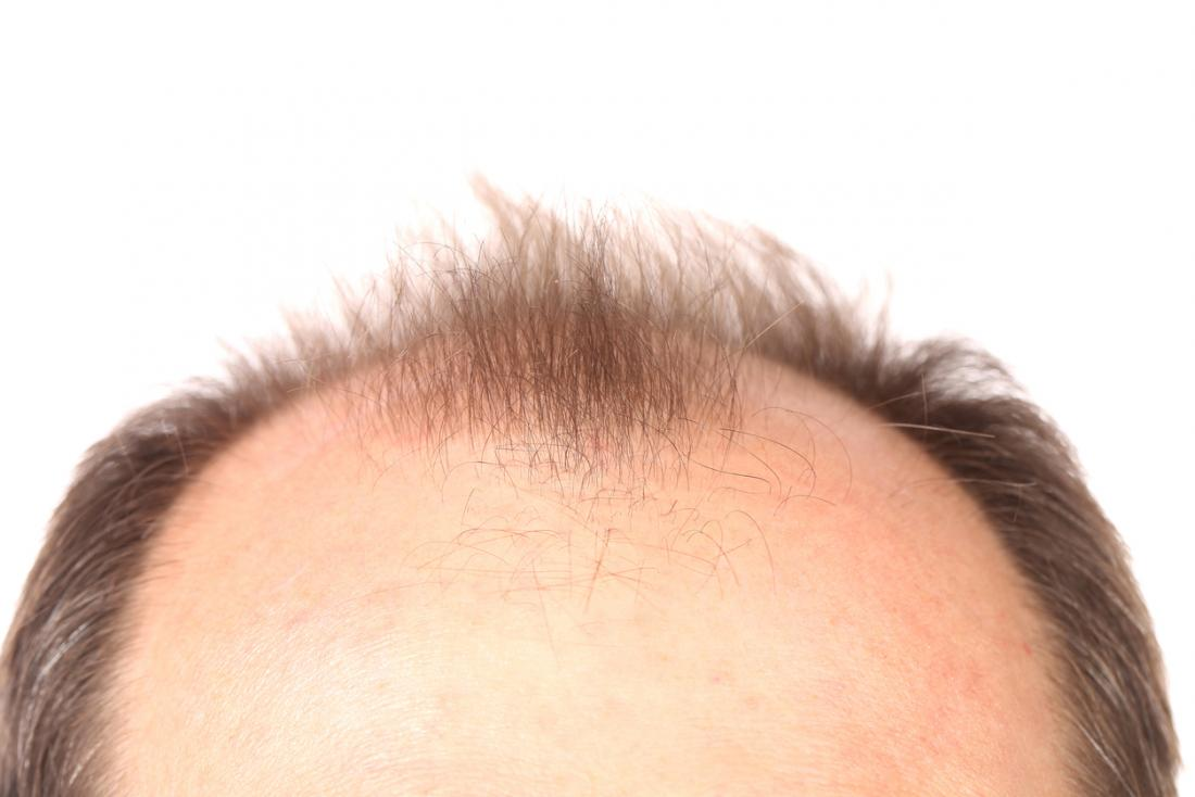 top of head with receding hairline
