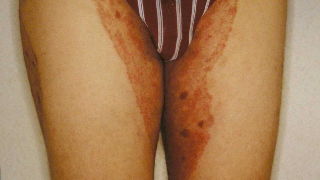 Thrush can affect the genital area in men as well as women.