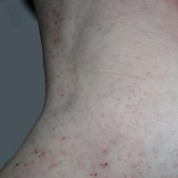 Skin Rash Causes 68 Pictures Of Symptoms And Treatments