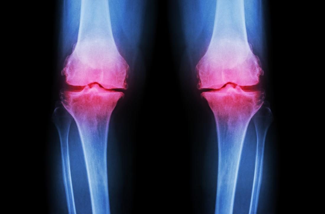 an xray showing knee joint pain