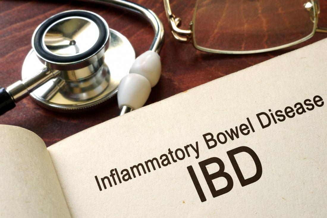 IBD written in a book