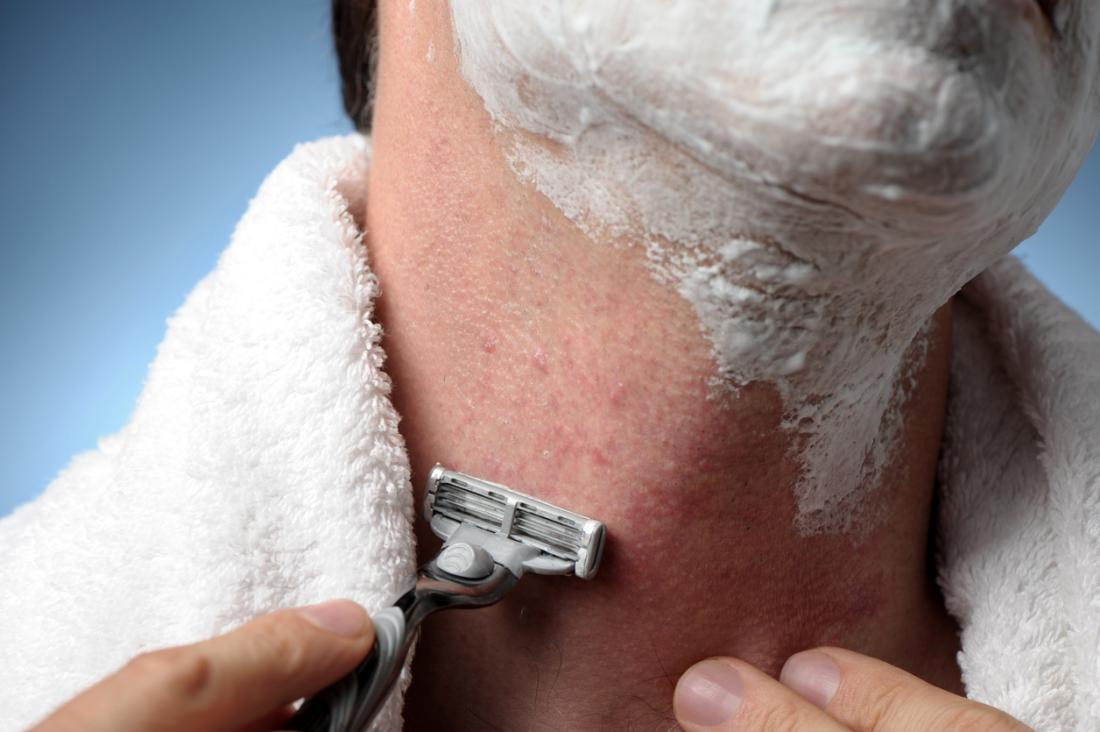 Shaving testicles itch after Itchy After
