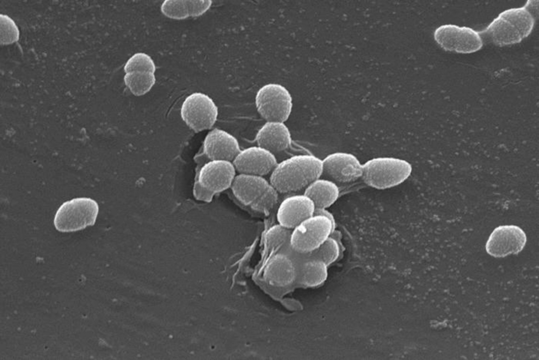 Enterococcus faecalis bacteria. <br />Image credit: Janice Haney Carr, CDC/Pete Wardell.</br>