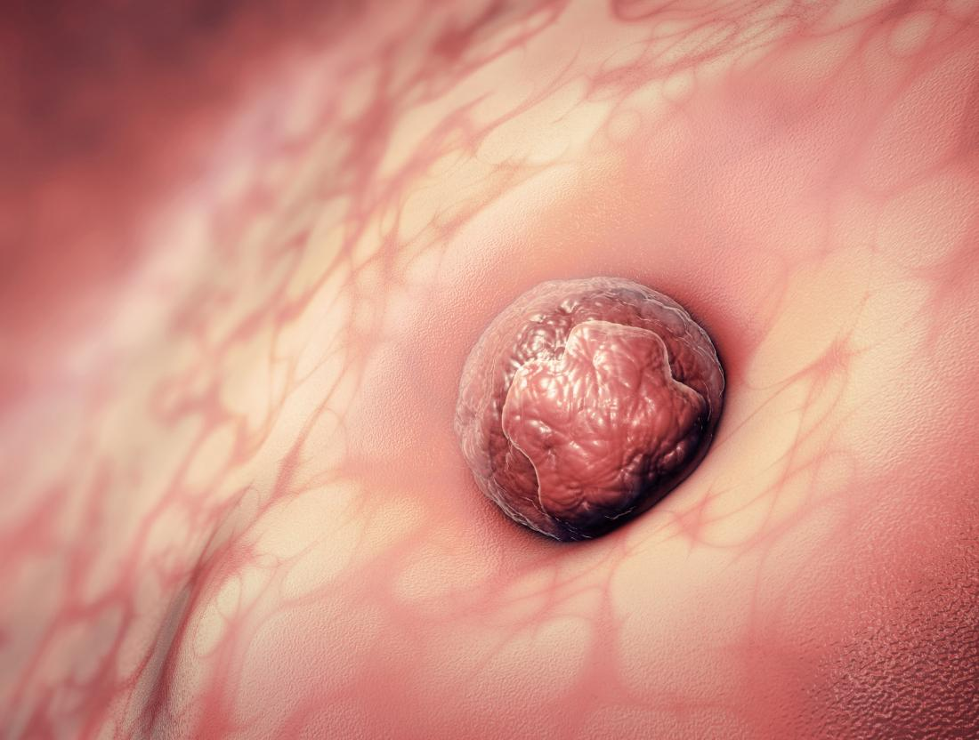 3d illustration of an egg cell sticking to the uterus