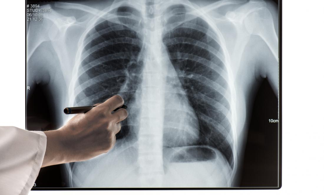 X-ray image of ribcage.
