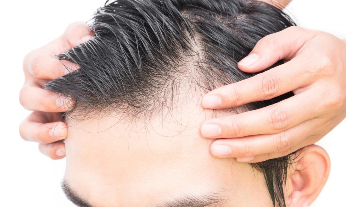close up of balding man's hair