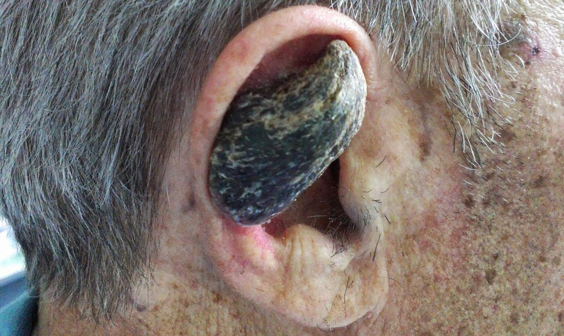 Cutaneous horn. <br>Image credit: Jojo (2013, May 27).</br>