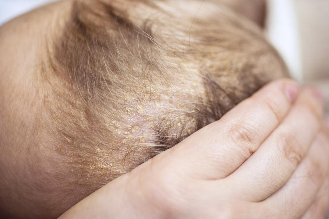 Seborrheic Dermatitis or cradle cap on scalp.