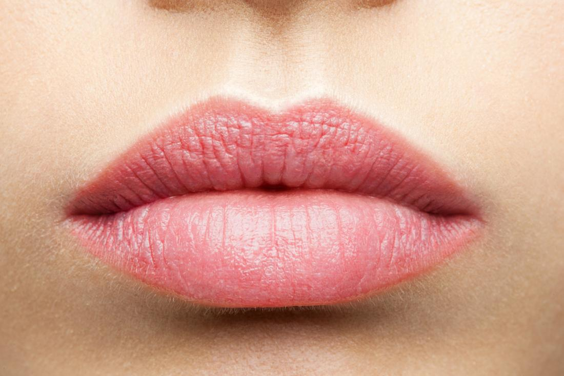 Actinic Cheilitis Causes Treatment And Prevention