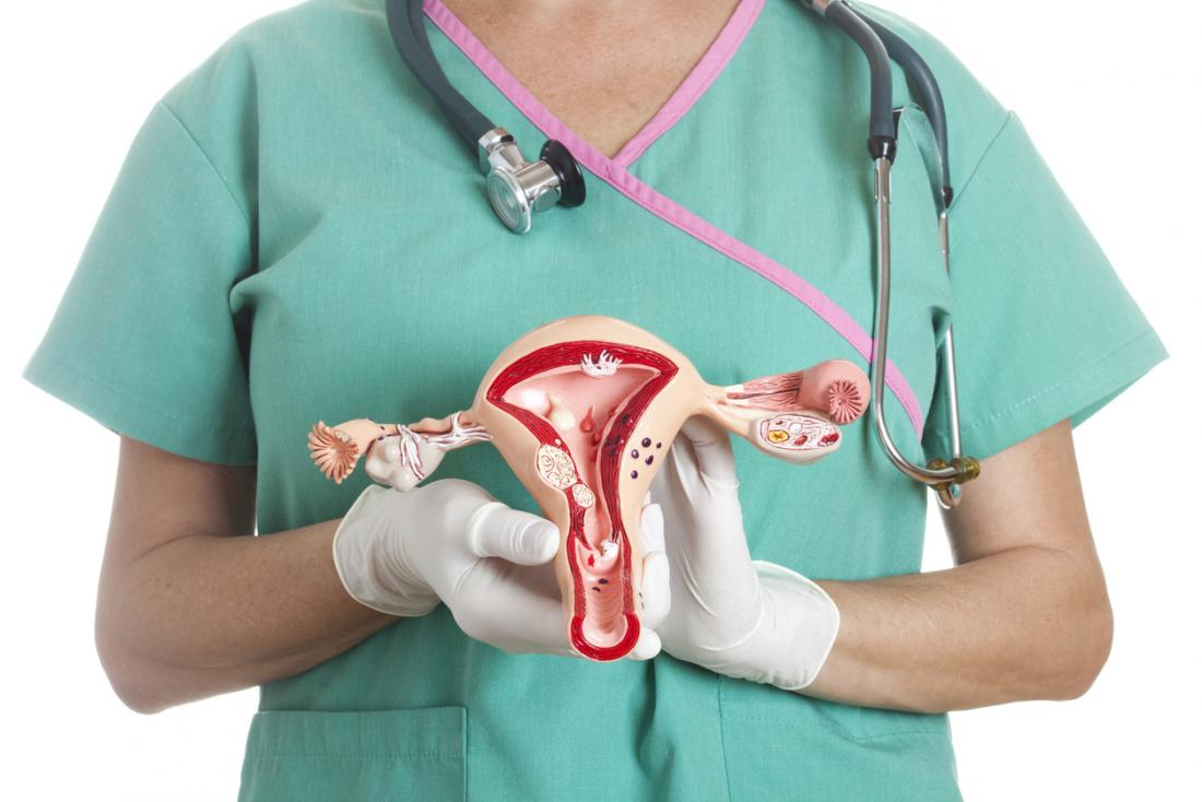 doctor with model of a uterus
