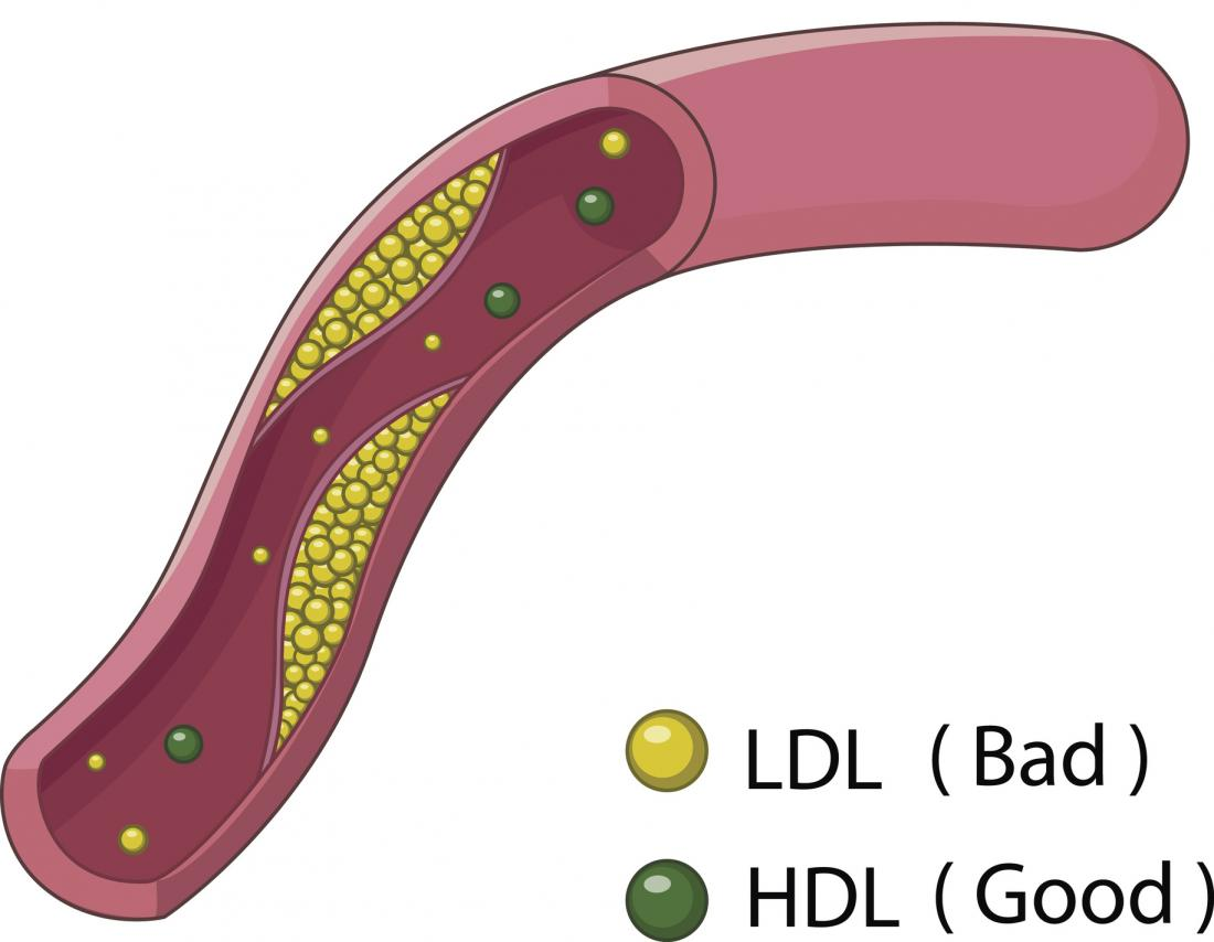 illustration of LDL and HDL