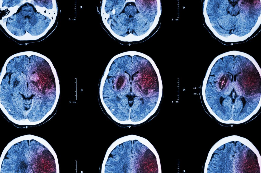 images of ischemic stroke