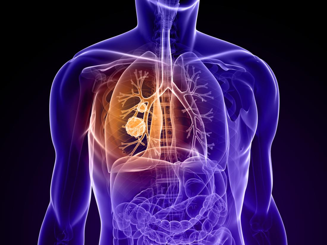 lung cancer illustration