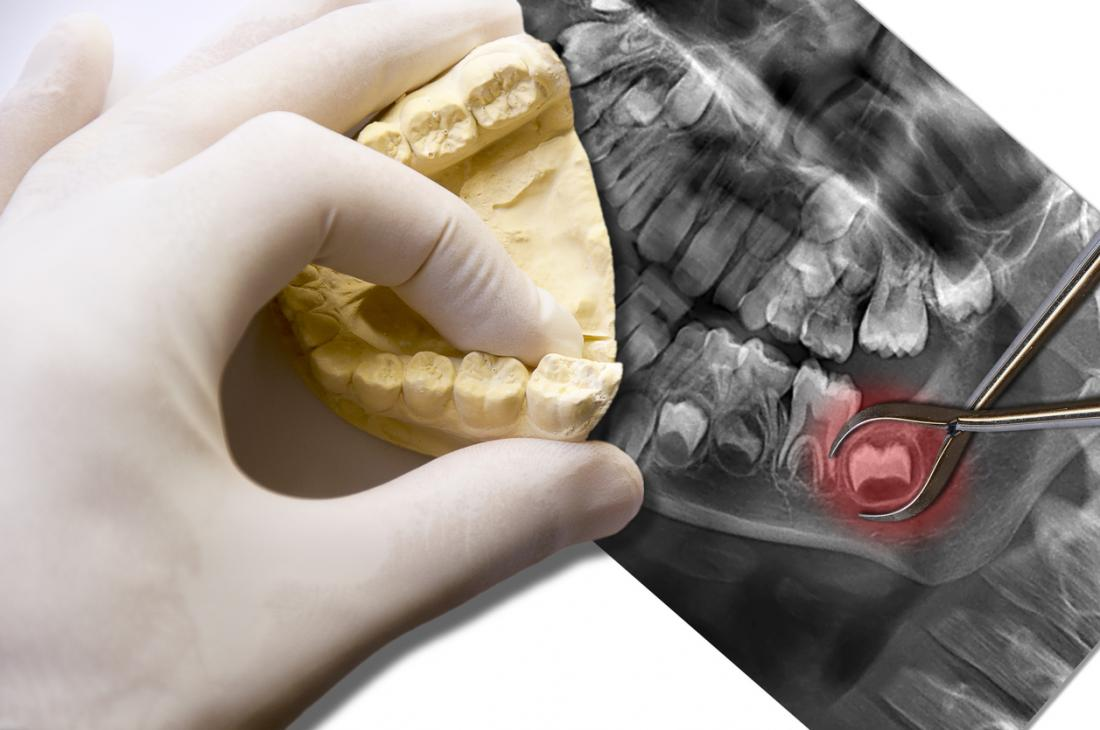 Wisdom teeth on an x-ray of the mouth, and a gloved hand looking at a model of the lower teeth on top.